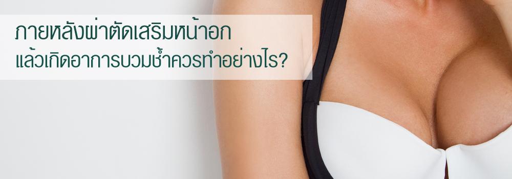 ภายหลังผ่าตัดเสริมหน้าอก แล้วเกิดอาการบวมช้ำควรทำอย่างไร?